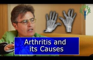 Arthritis and its Causes with Thierry Hertoghe and Nick Delgado